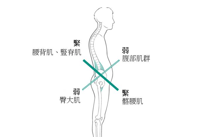 失去臀肌能力會讓你容易出現下交叉症候群
