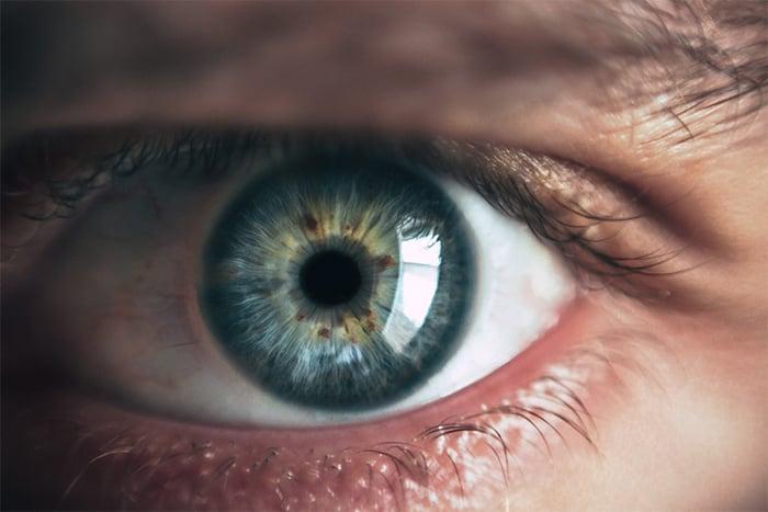 口服A酸可能影響視力輕微下降 畏光