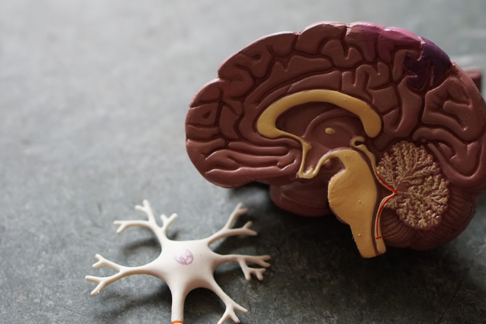腦部出現不正常斑塊和神經纖維糾結物,是導致阿茲海默症發生的主因之一。