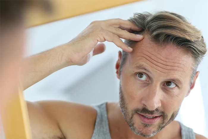 掉髮為缺乏維他命D的現象之一