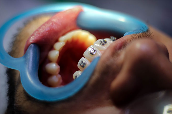 改善睡覺流口水 矯正牙齒