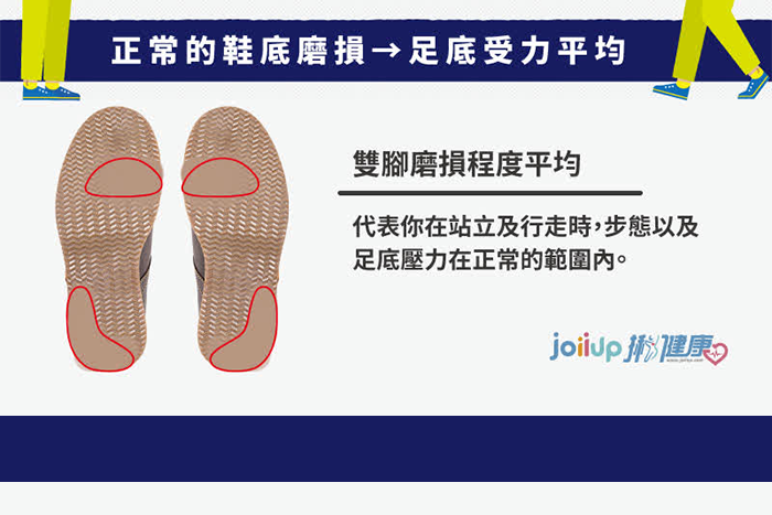 正常的鞋底磨損