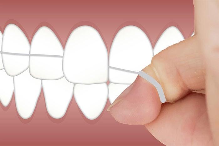 用牙線清潔牙齒