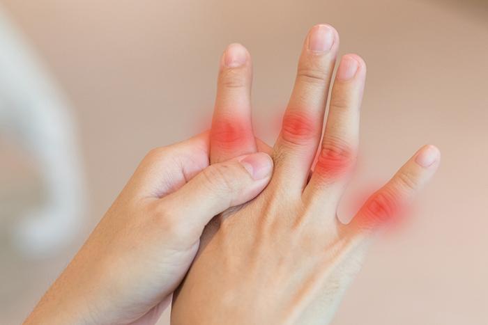 尿酸過高併發症-痛風