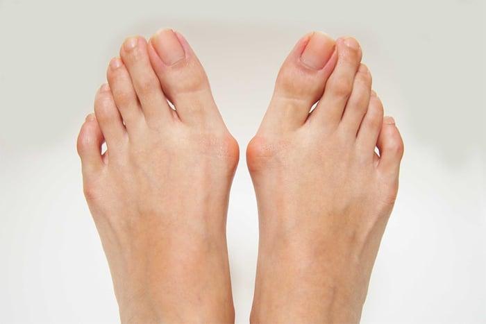 穿錯鞋.扁平足讓你拇趾外翻  嚴重恐誘發偏頭痛?