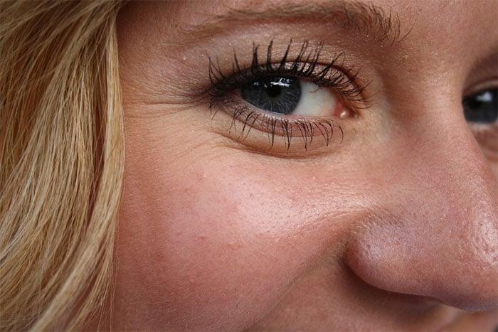 老化皮膚變差 皺紋變多