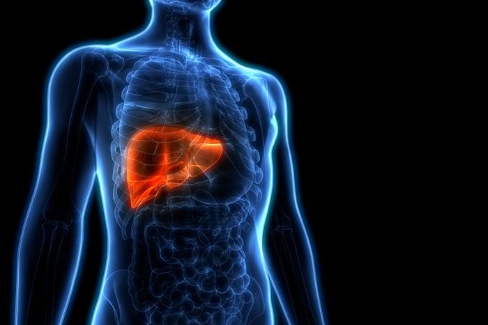 肝癌3高危險族群 小心爆肝