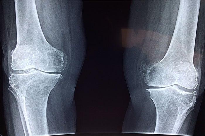 銀髮族 容易骨質疏鬆