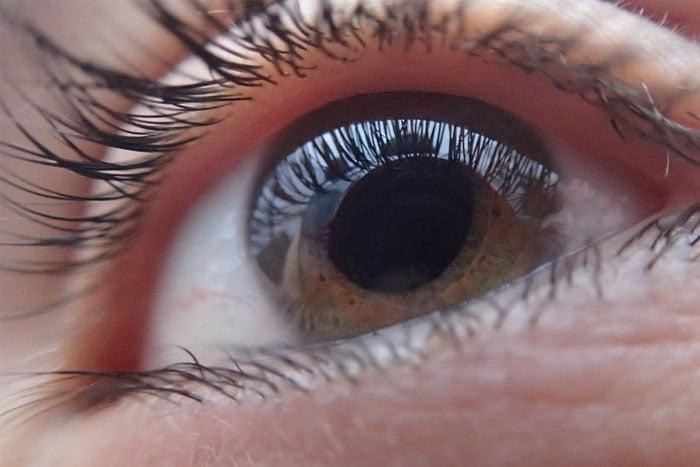 青光眼不治療 25%恐失明