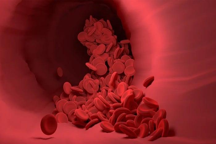 Q10 預防心血管疾病