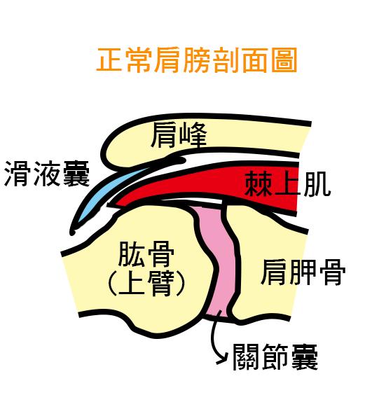 3大肩膀痛症狀 肩夾擠症候群 正常肩膀剖面圖