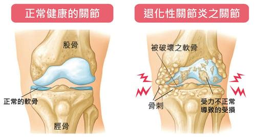 正常關節與退化性關節炎圖片
