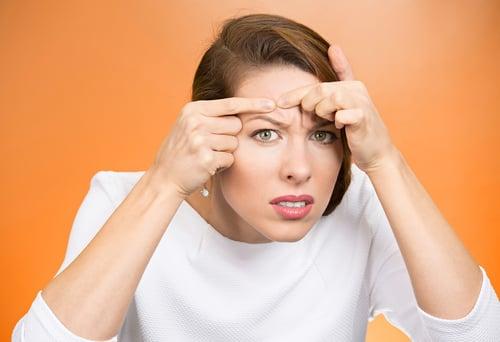 擠痘痘會讓人有種痛快感,但是把白白的膿包擠出來,通常會導致發炎和留下疤痕,俗稱痘疤。留下滿臉凹凹凸凸的痘疤,反而需要花更多的時間來治療淡化它