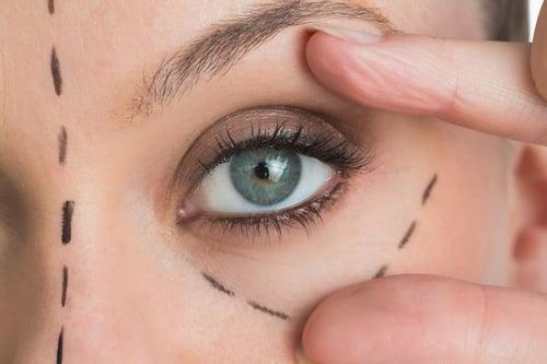 雖然擺脫黑眼圈的方法可以靠眼瞼手術治療,但不是每個人都負擔得起!