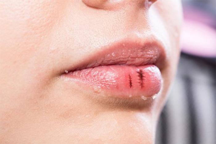 嘴唇乾裂 嘴唇破皮 流血